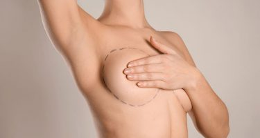 How to Choose the Right Breast Implants?