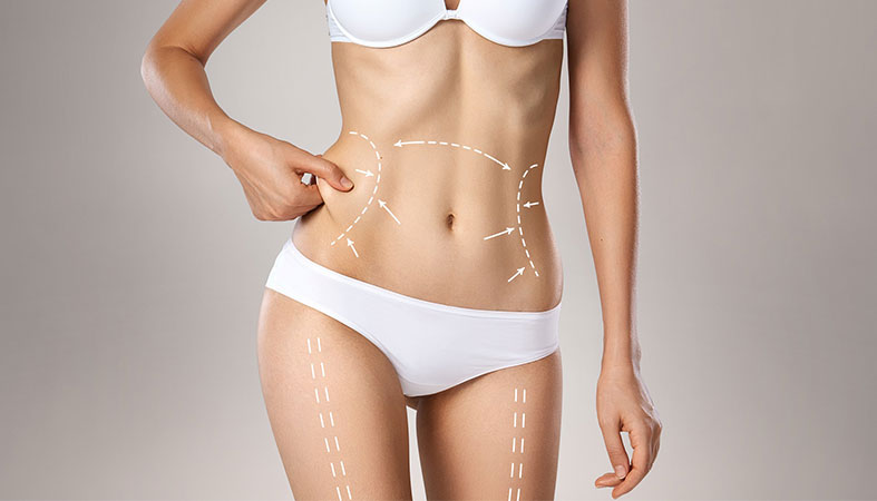 Vaser Liposuction: Recovery Tips