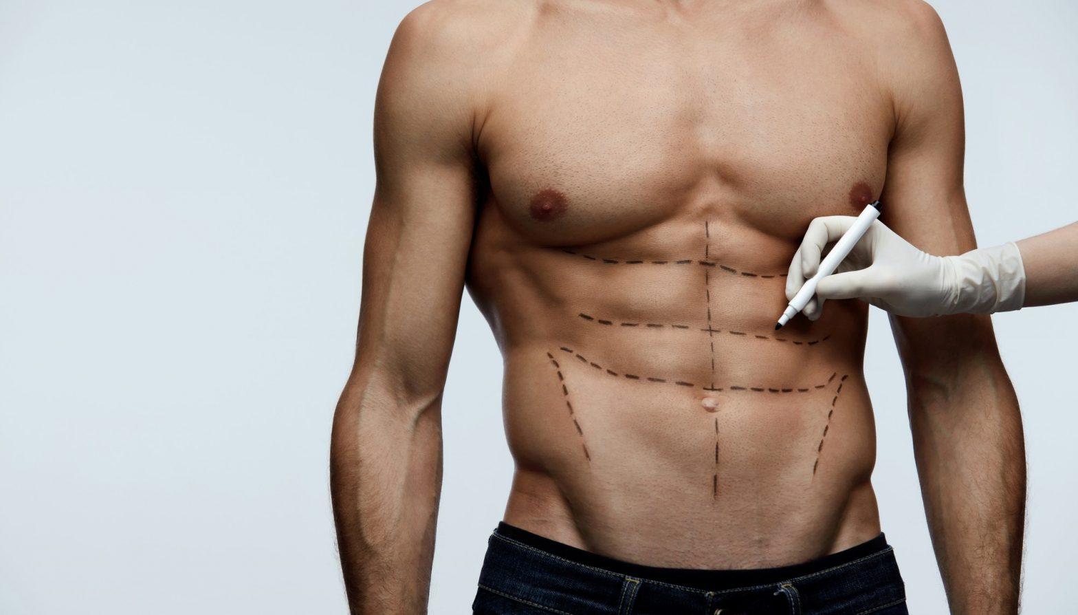 Vaser Liposuction vs Laser Liposuction